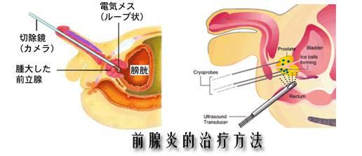 前列腺炎如何治疗&急慢性前列腺炎的护理方法