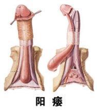 男人阳萎的症状图片│阳痿三种不同程度症状表现