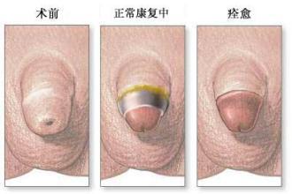 包皮手术***愈合图片【包皮手术后5大护理要点】