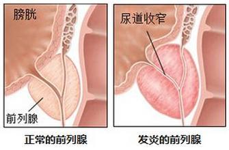 前列腺在什么位置图片【四个前列腺功能必知】