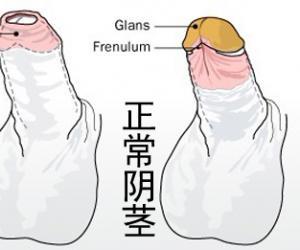 增长阴茎的方法(图解)【超实用】
