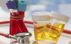 血尿是什么原因引起的?「患者自检方法」