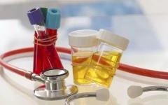 尿常规什么时候检查合适?尿常规都检查什么?