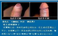 包皮手术后伤口愈合图片「图」如何愈合?