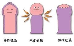 勃起之后包皮翻过来有轻微的疼痛感,小心这些麻烦!