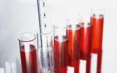 尿隐血需要做什么检查?小心看不见的危害
