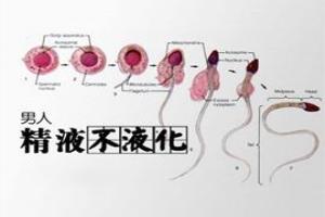 精子不液化是什么样子?哪些原因是罪魁祸***?
