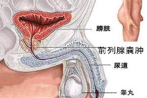 淮安前列腺囊肿手术费用多少钱?「费用解析」