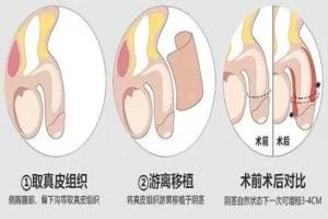 淮安做阴茎增大手术哪里好?这些条件要满足